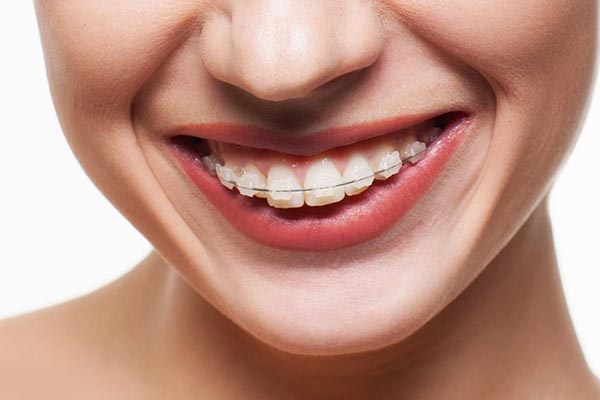 Ceramic Braces in New Jersey