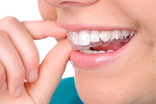 Invisalign Provider in New Jersey