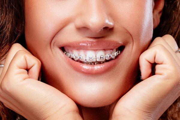 metal braces in Englewood