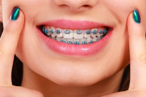 Traditional Braces in New Jersey